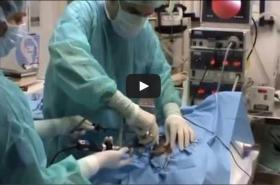 Ovariectomia Laparoscopica